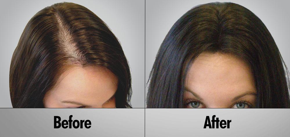 hair-transplant-thumb6
