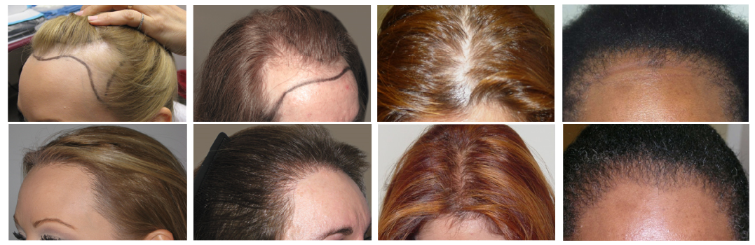 female-hair-tranplant