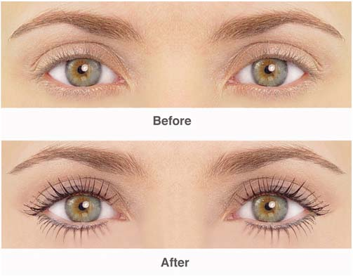 lashes-transplant